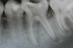 Root-Canals-Before-Image